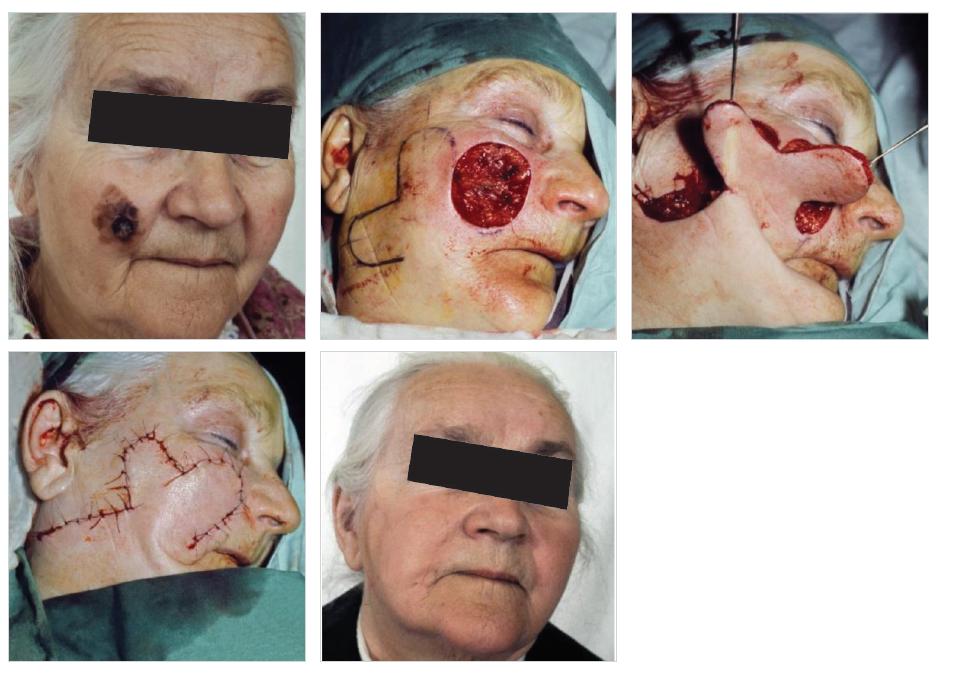Krytí defektu obličeje dvojitým lalokem po odstranění kožního nádoru Fig. 1: Coverage of a facial defect with a bilobed flap after removal of a skin tumor