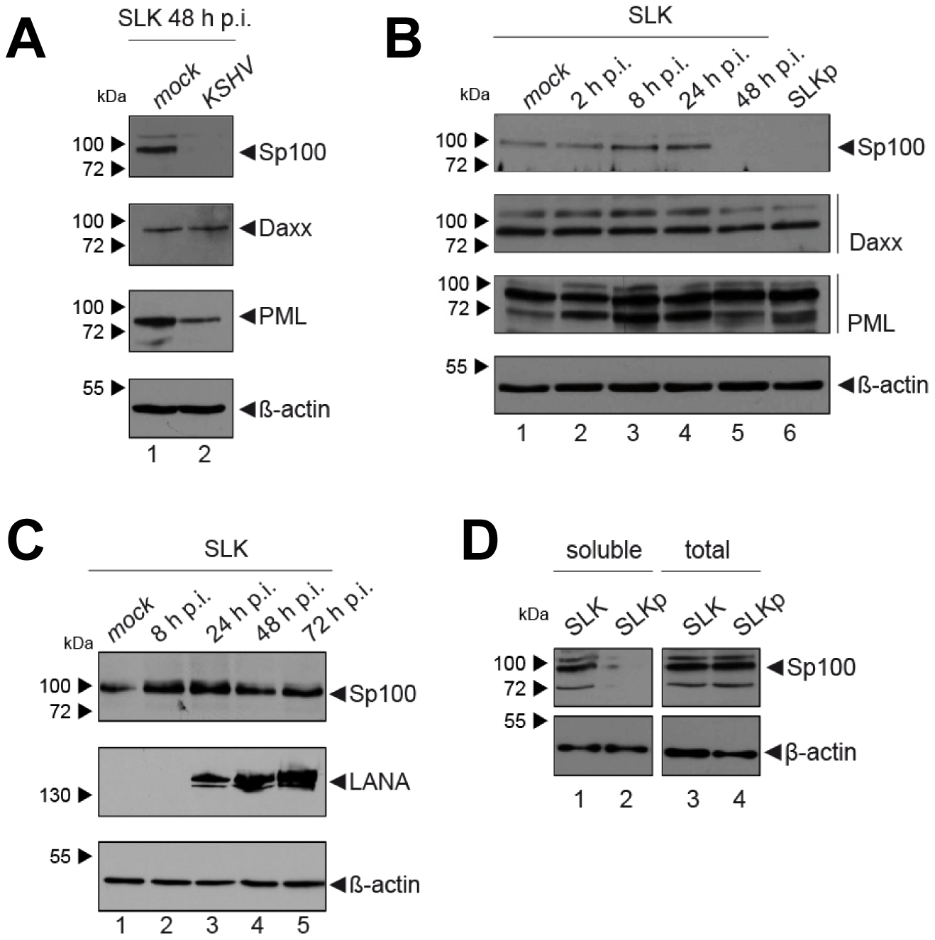Soluble Sp100 levels are reduced upon KSHV infection of SLK cells.