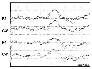 Lateralizované zvýšení precentrálních komponent SEP n. medianus u pacienta s levostrannou torticollis.