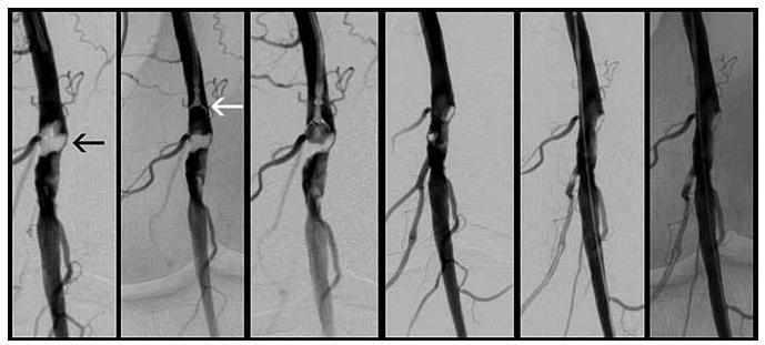 Ukázka léčby stenózy podkolenní tepny u nemocného s klaudikačním stadiem ischemické choroby dolních končetin. Z leva doprava je patrno postupné odebírání stenozující tkáně (černá šipka) endomyokardiálním bioptomem (bílá šipka). Při této technice se neuplatní tlakové trauma (jako např. při balónkové angioplastice či implantaci stentů) a téměř je eliminován výskyt restenóz.
