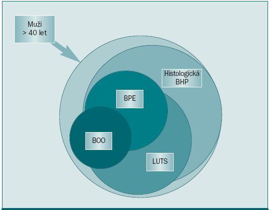 Vztah mezi histologickou diagnózou hyperplazie prostaty, příznaky dolních močových cest, zvětšením prostaty a obstrukcí dolních močových cest [5].