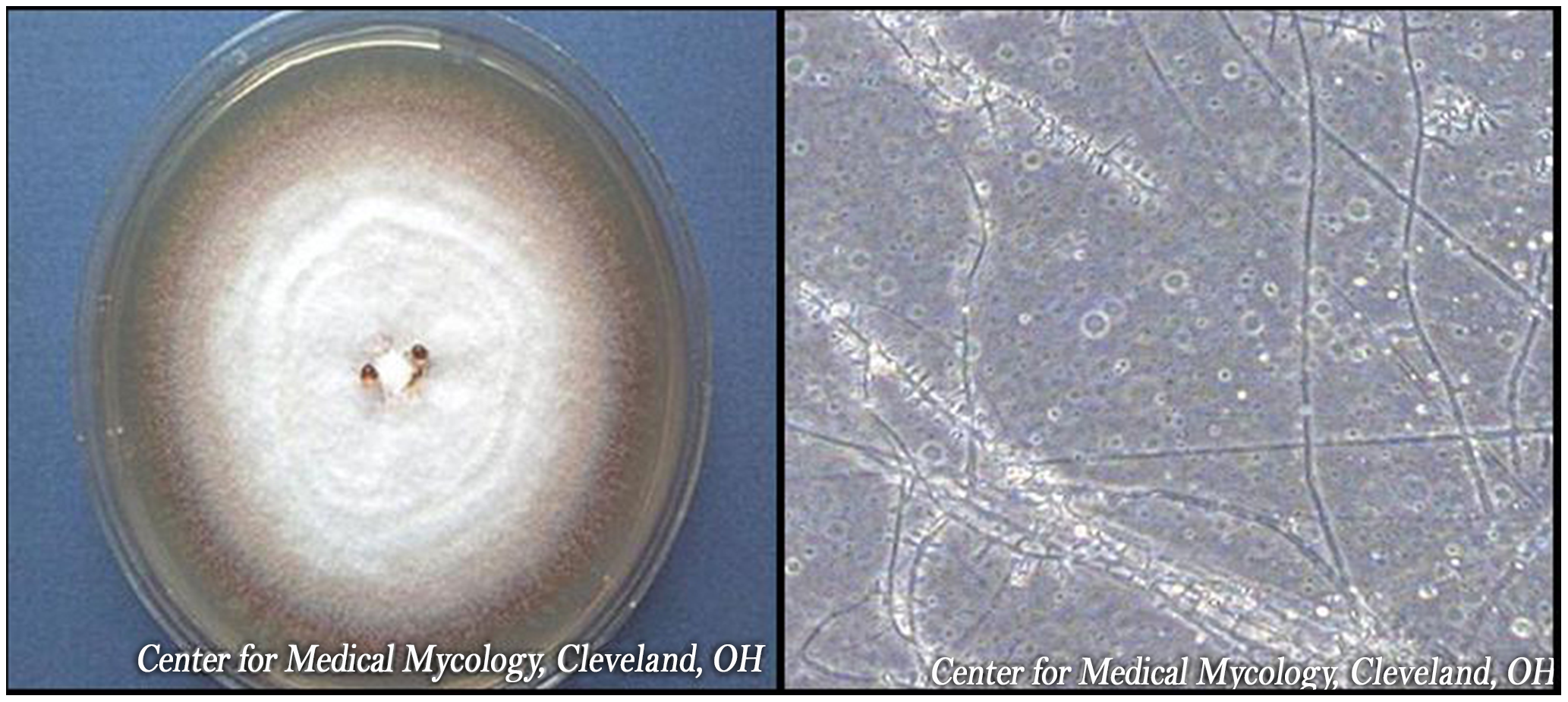 <i>Trichophyton rubrum</i> colony and microscopic appearance (40x).