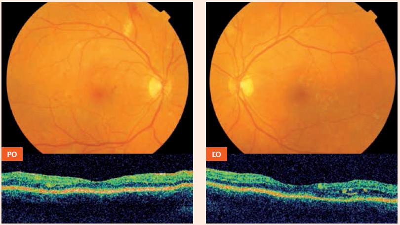 Nález pri prvom vyšetrení – 29. 4. 2011,16 mesiacov pred počatím (incipientná proliferatívna DR s edémom makuly vľavo) PO – pravé oko ĽO – ľavé oko