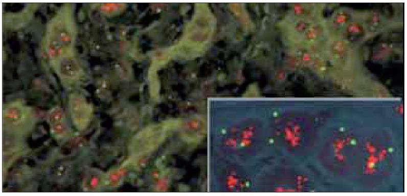 V případech silné amplifikace genu HER2 je počet červených signálů někdy tak vysoký, že dochází k jejich splývání ve formě objemných shluků. Vnitřní kontrolou je normální (tj. 2 kopie) počet zelených centromerických signálů.(dle www.patologie.info.cz)