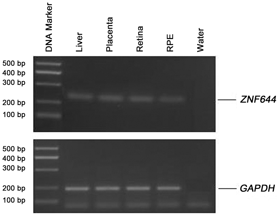 Expression of the <i>ZNF644</i> gene in human tissues.