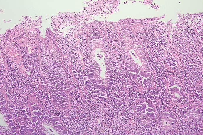 Biopsie v sigmatu, eroze povrchového epitelu, kryptové abscesy.