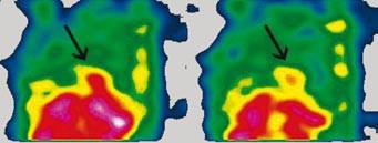 SPECT dutiny hrudní, sagitální řez. Metastáza maligního melanomu v pravé srdeční komoře (hrot šipky).