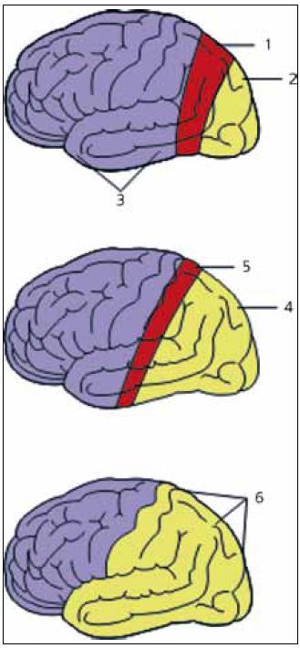 Vývoj ataky migrény s aurou založený na přítomnosti CSD.  Na počátku ataky je na okcipitálním pólu vyvolána CSD, která postupuje vlnovitým způsobem dopředu. Na předním okraji CSD je znázorněna oblast depolarizace neuronů (1), která je následovaná oblastí s vyhaslou synaptickou aktivitou a pokleslým korovým krevním průtokem (2). Krevní průtok v oblastech nepostižených CSD zůstává naprosto normální (3). Oblast sníženého krevního průtoku se postupně šíří (4), jak se CSD posouvá více dopředu (5). Posléze depolarizace neuronů na předním okraji vyhasíná, ještě přetrvává snížení korového krevního průtoku (6). Upraveno dle [6].