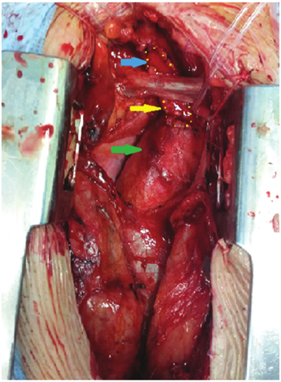 Peroperační nález, žlutá šipka − protetická plastika, zelená šipka − asc. aorta, modrá šipka − truncus brachiocephalicus Fig. 3: Peroperative findings, yellow arrow − prosthetic patch, green arrow − ascending aorta, blue arrow − truncus brachiocephalicus