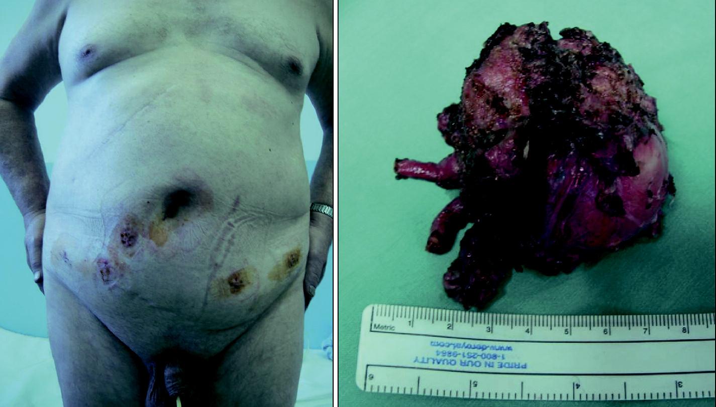 Obr. 9 A, B. Typické rozmístění incizí po robotické daVinci<sup>®</sup> radikální prostatektomii  A. Typické rozmístění incizí po portech u obézního pacienta (2. pooperační den před propuštěním do domácího ošetření) po provedené robotické daVinci radikální prostatektomii pro karcinom prostaty  B. Patrné jsou jizvy po portech a předchozích operacích s radikálním odstraněním objemné prostaty (která byla příčinou subvesikální obstrukce) se semennými váčky a přilehlými úseky ductus deferens