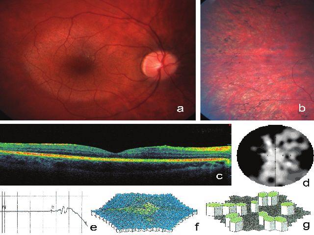 Klinické nálezy zjištěné na pravém oku u 22letého muže (IV:1) s retinitis pigmentosa podmíněnou mutací v ORF15 genu RPGR. Fotografie fundu dokumentuje normální vzhled papily, relativně zachovalá makula s cirkulárním projasněním kontrastuje s chorioretinální atrofií v periférii a). Periferie se shluky pigmentu tvaru kostních buněk b), horizontální sken SD-OCT zobrazující normální makulu a snížení výšky sítnice a cévnatky okolo makuly c), zorné pole s anulárním skotomem d), reziduální tyčinková odpověď e), snížení hustoty odpovědí na trojrozměrném obraze při multifokální ERG f), zbytkové oblasti elektrické aktivity sítnice představované zelenými šestiúhelníky g)
