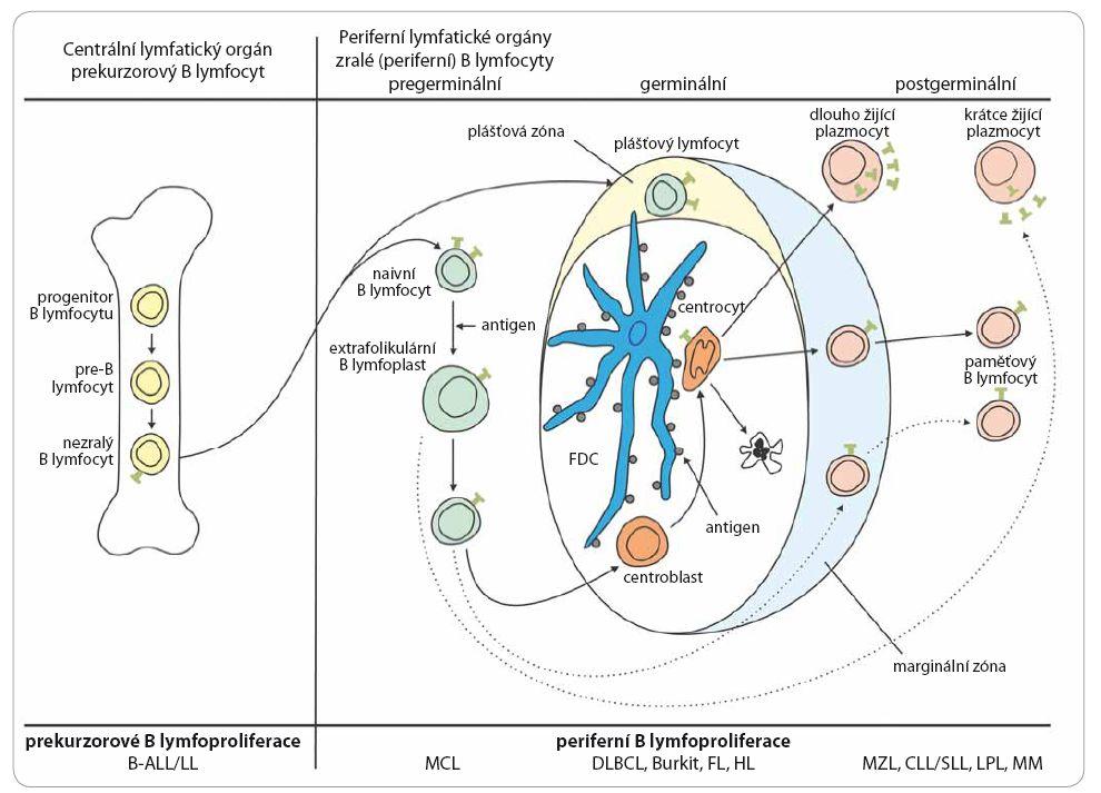 Schéma vývoje B lymfocytu a přehled jednotlivých jednotek B buněčných lymfoproliferativních nádorů.