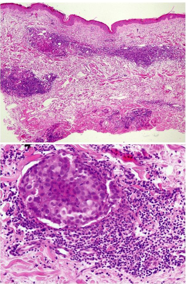 Metastázy adenokarcinomu prsu šířící se lymfatickými cévami (a – přehled, HE, 40x, b – detail, HE, 400x).