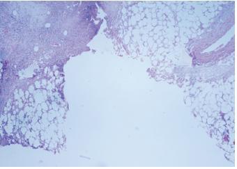 Stupeň TDD III – velké zhmoždění tkáně, velké trhliny