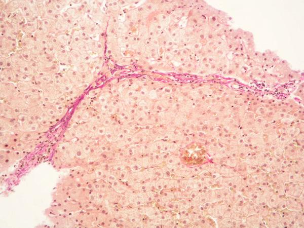 Primární biliární cirhóza. Mírně aktivní chronická hepatitida, destrukce interlobulárních žlučovodů, stadium 2 dle Ludwiga. Barvení: H&E, zvětšeno 20x.