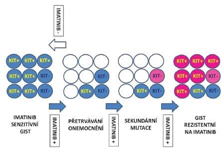 Hypotetický model perzistence kmenových buněk GIST a sekundární rezistence.