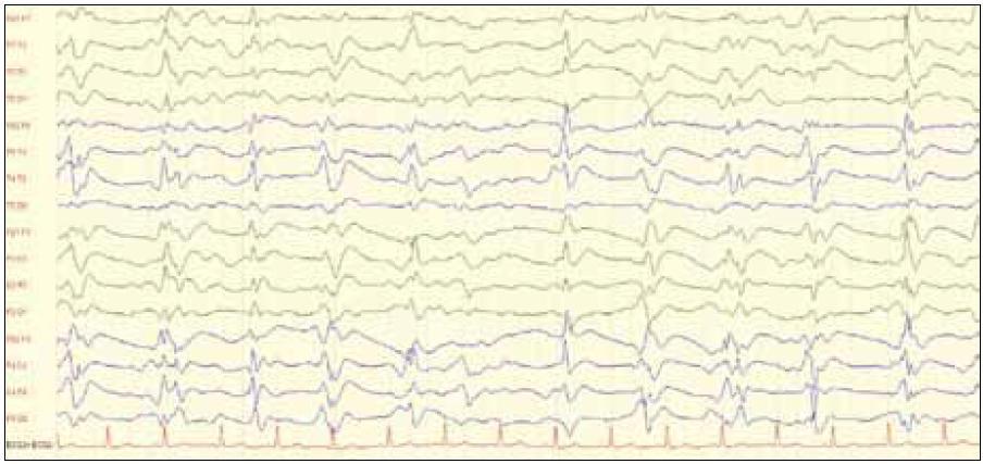 EEG záznam (10 s, amplitúda 75 nV/cm) s prítomnosťou periodických trifázických vĺn u 49-ročnej pacientky s potvrdenou genetickou formou CJch (mutácia E200K s polymorfizmom priónového génu v kodóne 129 Metionín/Metionín, pozitivita proteínu 14-3-3 v likvore). Zdroj: Archív Neurologickej kliniky LF UP JŠ a UN LP Košice.