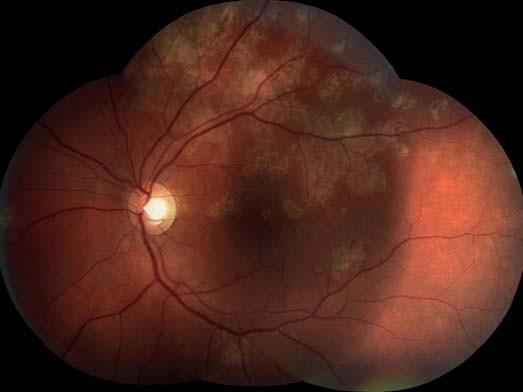Levé oko. Původní aktivní ložiska na sítnici se postupně ohraničují a částečně pigmentují.
