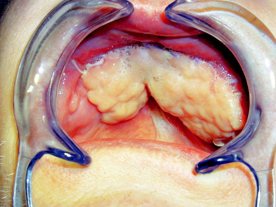 Defekt po oboustranné maxilektomii, rekonstruovaný temporálním svalem z pravé a levé strany.