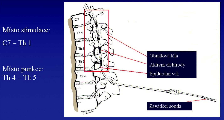Schéma implantace neurostimulátoru