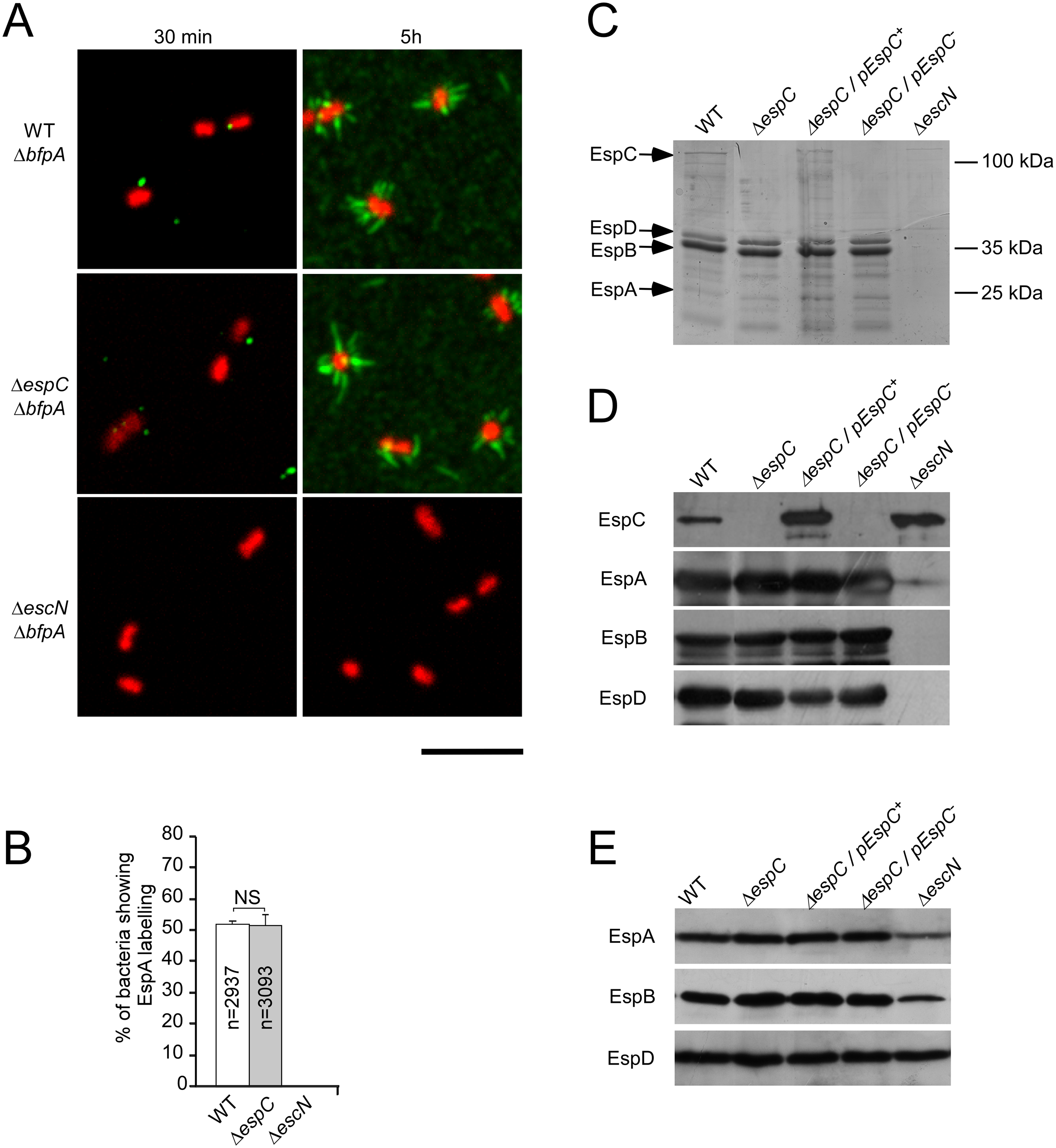 EspC does not regulate EspA filament structures at the surface of primed bacteria.