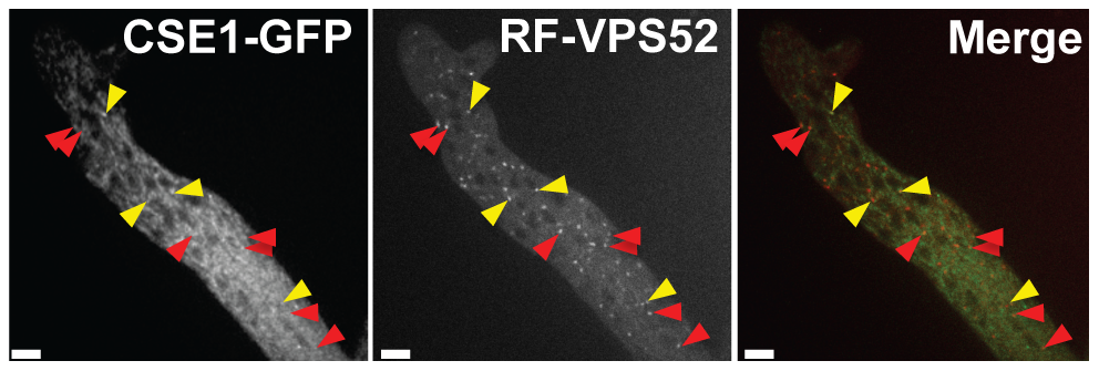 CSE1-GFP and RFP-VPS-52 colocalization.