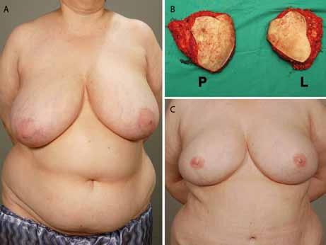 A. Zdravá BRCA1-pozitivní pacientka (skupina A) před prostou, kůži šetřící mastektomií; 1B. Preparáty po mastektomiiů; 1C. Po rekonstrukci dvěma DIEP laloky a rekonstrukci areolo-mamilárních komplexů.