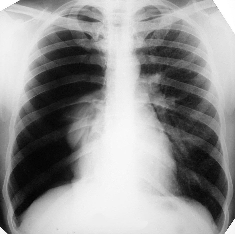 RTG hrudníka pri prijatí, zobrazujúca kompletný spontánny PNO vpravo Fig. 1. Thoracic X-ray on admission, depicting complete spontaneous pneumothorax on the right