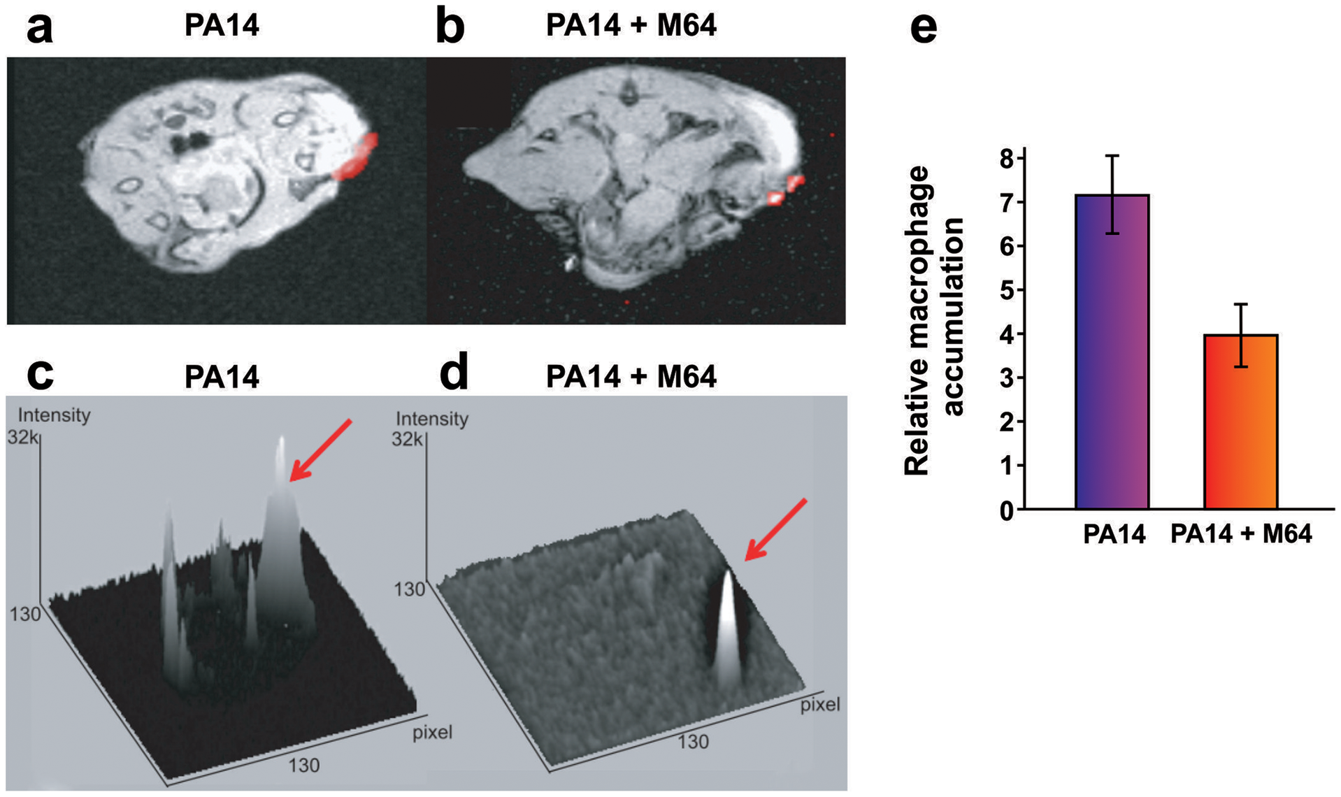 Magnetic resonance imaging of M64 inhibition of macrophage recruitment at a burn and infection site.