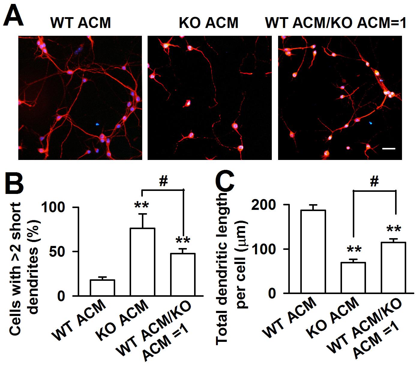 <i>Fmr1</i> KO ACM altered the morphology of WT cortical neurons.