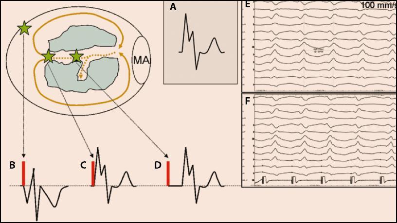 <b>Pacemapping je stimulační manévr, který se používá zvláště u nemapovatelných KT nebo KES a slouží k vyhledávání reentry okruhu nebo k lokalizaci ektopického zdroje.</b> Stimulace se aplikuje při sinusovém rytmu. Principy pacemappingu jsou do jisté míry podobné jako u entrainmentu. Srovnává se tvar QRS komplexu při KT (schematicky na obrázku A, EKG příklad na obrázku E) s tvarem QRS komplexu při stimulaci (schematicky na obrázcích B, C, D, EKG příklad na obrázku F). Při stimulaci v místě mimo reentry okruh (B) je QRS komplex odlišný od QRS komplexu KT (zelené hvězdy označují místo stimulace). Při stimulaci v místě, kde přechází oblast pomalého vedení do zdravého myokardu (v místě tzv. exitu, čili v místě, kde se při KT aktivuje zdravý myokardu jako první), respektive při stimulaci do místa ektopického zdroje, se při stimulaci vybudí QRS komplex shodný QRS komplexem KT, ale interval od stimulu do QRS bude nulový (aktivuje se již přímo zdravý myokard vyznačující se rychlým vedením akčního potenciálu) (C). Při stimulaci uvnitř tzv. oblasti pomalého vedení se bude indukovat QRS komplex shodný s QRS komplexem KT, ale interval od stimulu do QRS komplexu bude > 0 a bude reprezentovat převodní dobu nutnou na průnik aktivace z místa stimulace příslušným segmentem oblasti pomalého vedení do místa exitu do zdravého myokardu (D, F).