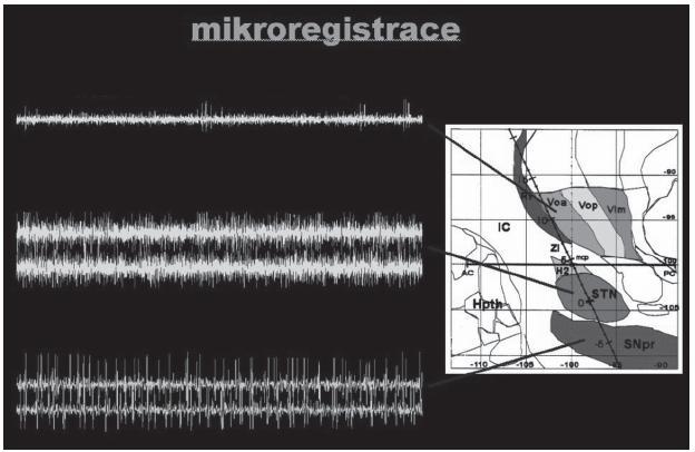 Obr. 10. Mikroregistrace elektrické aktivity z jednotlivých úrovní bazálních ganglií. Voa – ventrální orální anteriorní jádro thalamu, STN – nucleus subthalamicus, SNpr – substantia nigra.