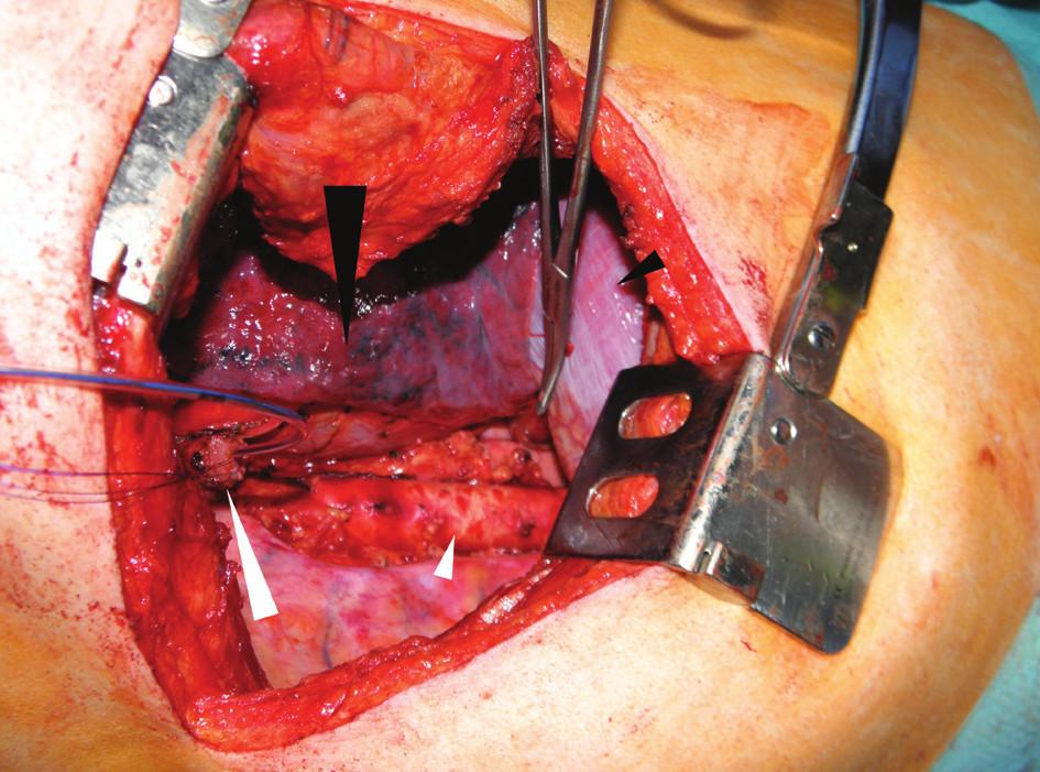 Operační nález při pravostranné thorakotomii: jícen přerušený nad nádorem s enterální sondou (velká bílá šipka), aorta po odstranění tukové tkáně s uzlinami po radikální lymfadenektomii (malá bílá šipka), pravá plíce (velká černá šipka) a bránice (malá černá šipka)