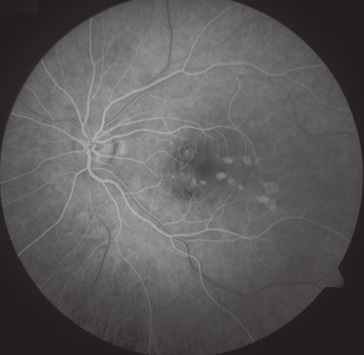 FAG oka levého. Hyperfluorescence window defektů RPE v místě již neaktivních pozánětlivých lézí