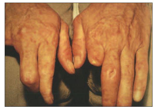 Raynaudův fenomén při systémové sklerodermii s trofickými defekty po amputacích distálních falang.