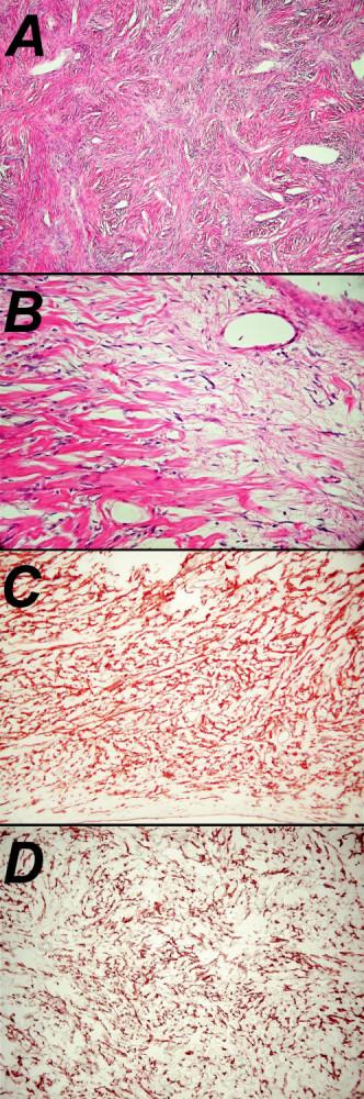 Mikrofotografia obrovského solitárneho tumoru (A – farbenie hematoxilín – eozín, 100x; B – farbenie hematoxilín – eozín 400x; C – imunohistochemická pozitivita CD34, 200x; D – imunohistochemická pozitivita bcl2, 400x) Fig. 4. Micro. Photography of the large solitary tumor (A –hematoxyllin-eosin staining, enlargement100x; B – hematoxylin- eosin staining, enlargement 400x; C – immunohistochemical positivity CD34, 200x; D – immunohistochemical positivity bcl2, 400x)