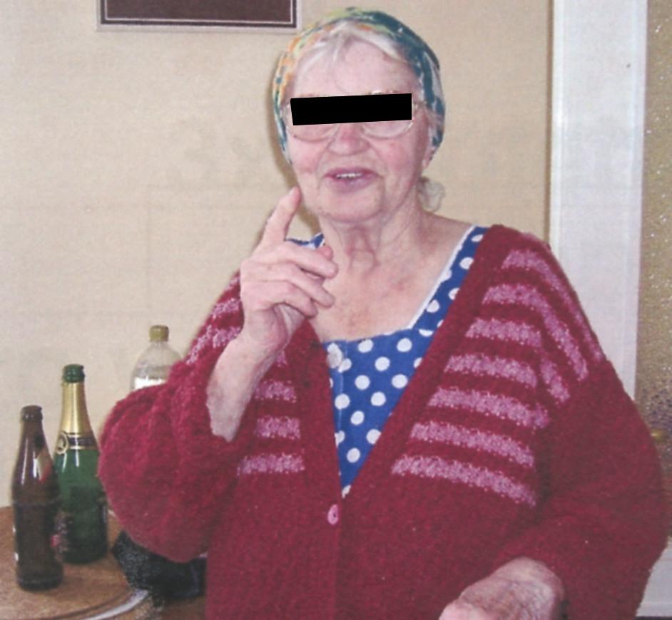 Seniorka 82 let, polymorbidní. Jasně jsou vyjádřeny somatické změny charakteristické pro vysoký věk Fig. 1. An elderly female, 82 y.o.a, polymorbid. Old age- characteristic somatic changes are clearly expressed