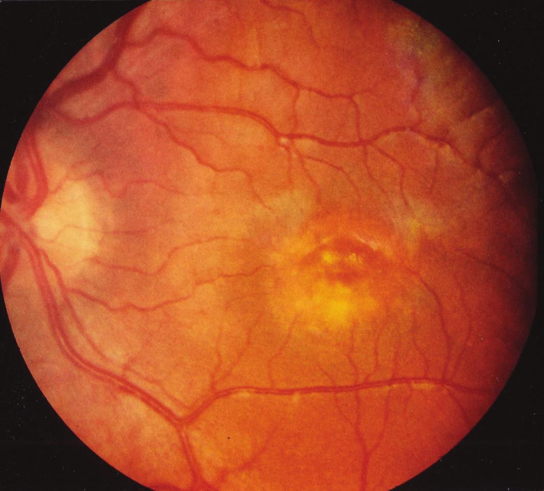 Obr. 2a. Solitárny viteliformný disk ľavého oka 8 ročného pacienta IV/7