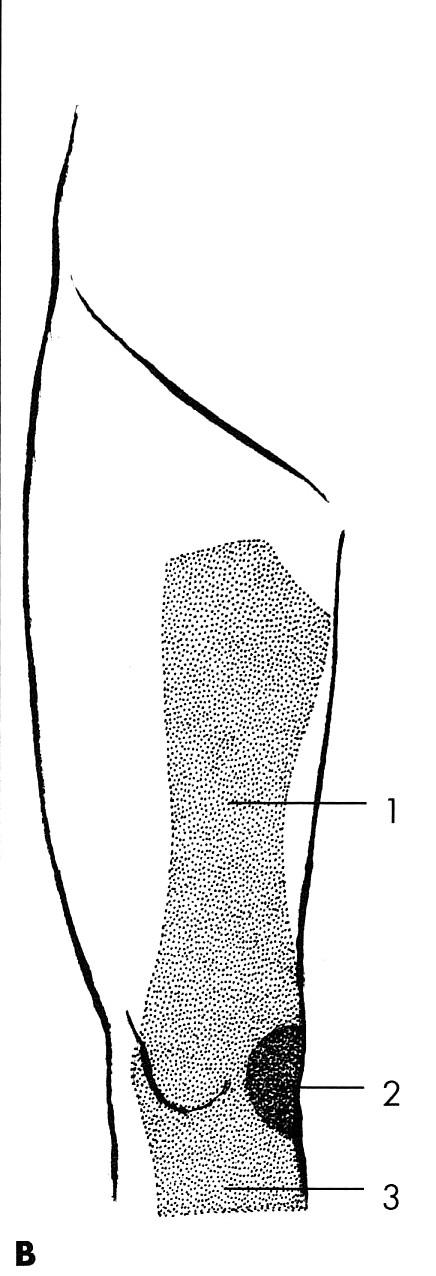 Obr. 3B. N. femoralis Kožní inervační zóny: 1 – rr. femorales anteriores, 2 – rr. patellares, 3 – n. saphenus.