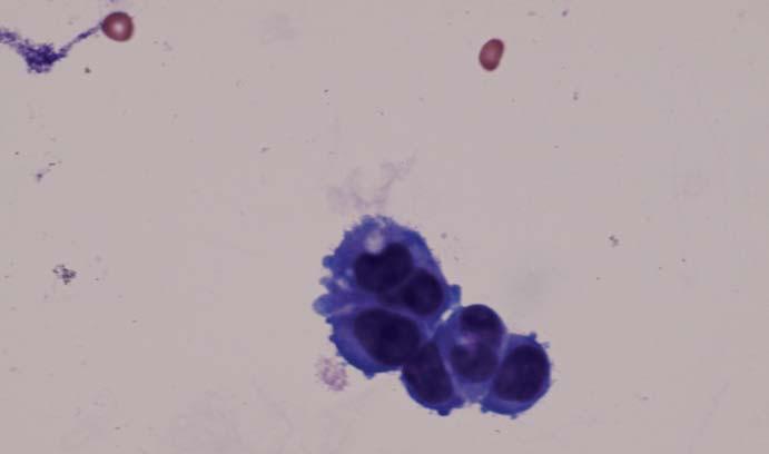 Výsledek cytologického likvorologického vyšetření s maligními buněčnými elementy (s poděkováním doc. MUDr. P. Adamovi, CSc.).