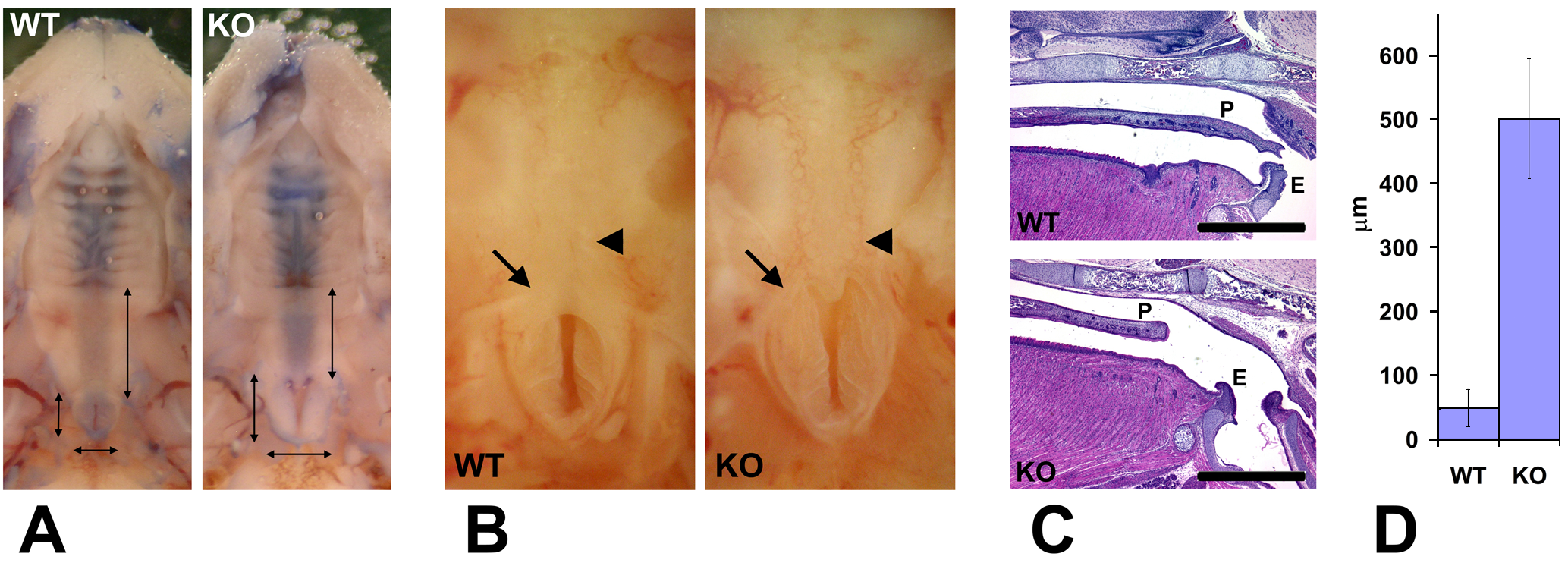 Wnt1-Ate1 mice have palate defects.