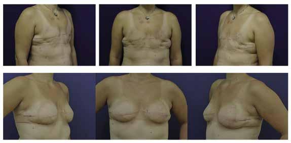 Rekonstrukce prsu přenosem vlastní tukové tkáně u pacientky po bilaterální mastektomii
