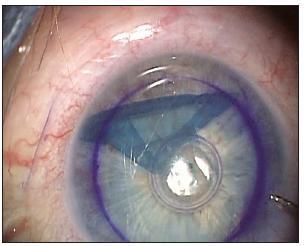 Částečně srolovaná lamela rohovky v přední komoře viditelná díky jejímu obarvení