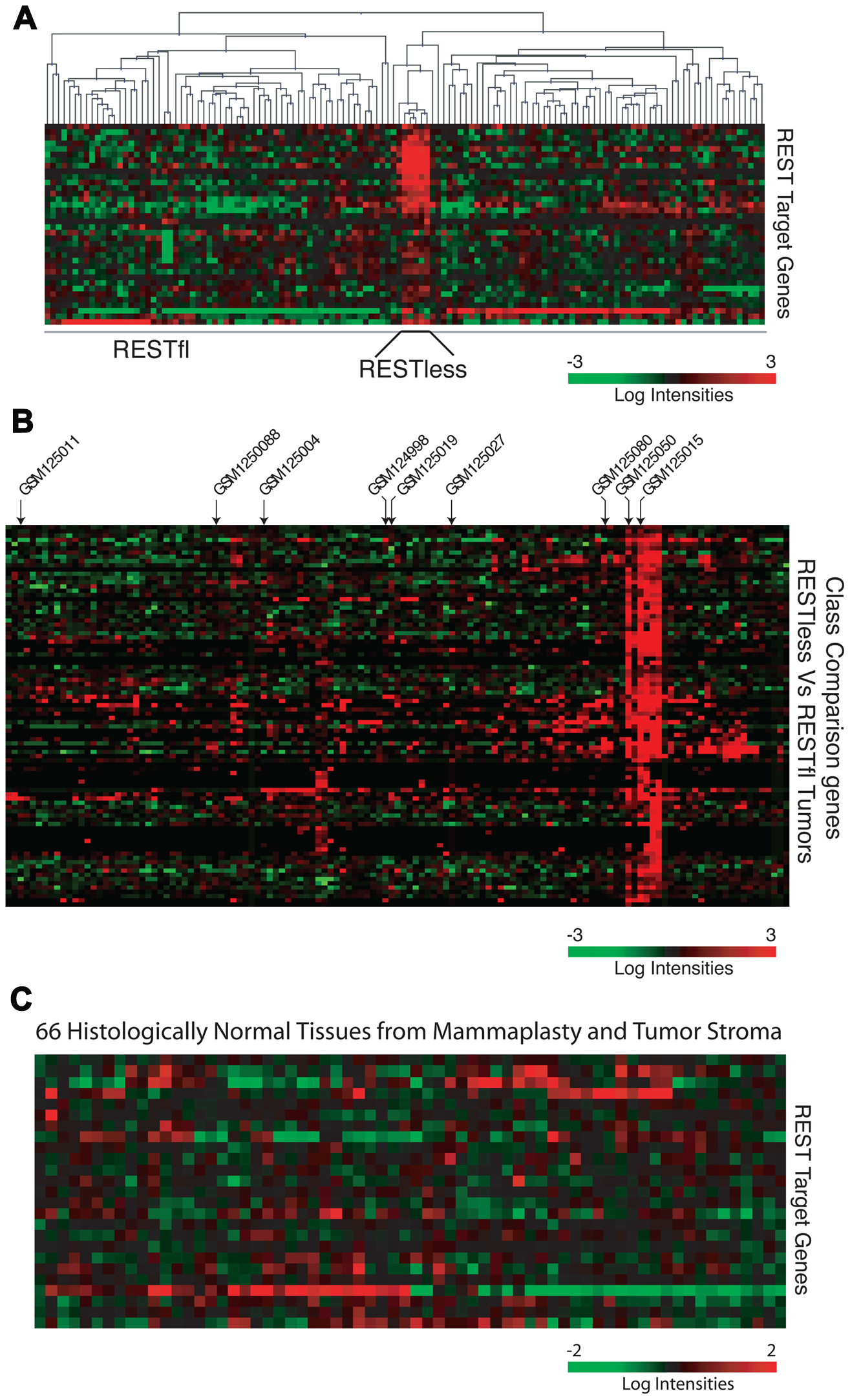 The 24-gene signature detects loss of REST function in breast tumors.