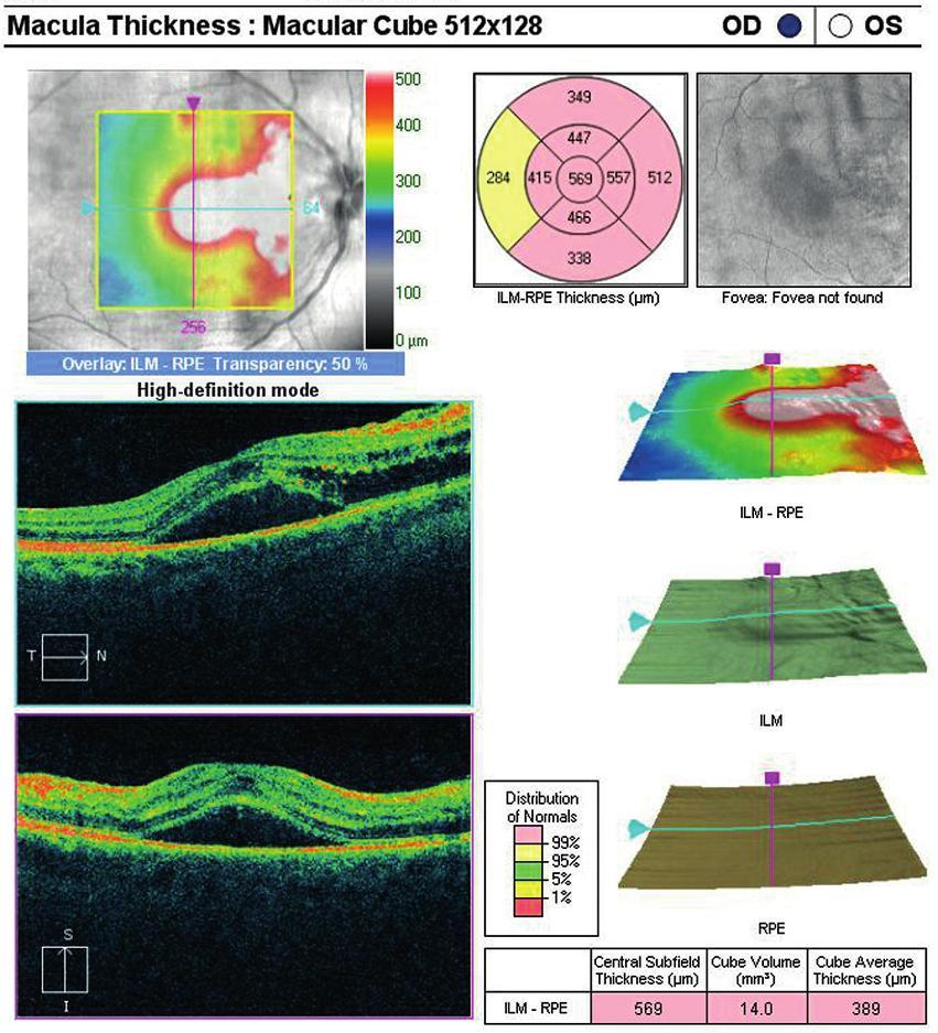 OCT centrální krajiny oka pravého. Nález volné tekutiny mezi neuroretinou a retinálním pigmentovým epitelem (RPE), edém neuroretiny, který pokračuje směrem k terči zrakového nervu.