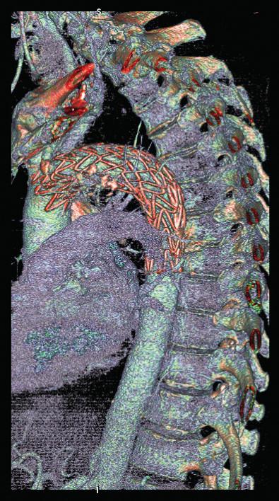 CTA obraz po implantácii druhého aortálneho stentgraftu.