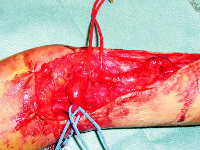 Peroperačný nález brachiocefalickej fistuly Fig. 4. Intraoperative finding of a brachiocephalic fistula
