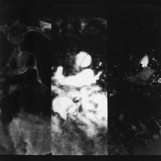 MR u aortální disekce ve vzestupné aortě v transaxiální rovině. Panel vlevo ukazuje spin-echo obraz, na kterém je mediálně vysoký intraluminální signál, pravděpodobně trombus nebo pomalý tok. Na středním panelu je krev znázorněna vysokým signálem a je vidět zřetelně odtrženou vlající intimu. Panel vpravo ukazuje rychlostně zakódovaný gradient echo obraz (rychlostní mapu) s bílým signálem zvyšující se rychlosti směrem k hlavě. Vysoký signál vidíme v plicní arterii a laterální části aorty. Ve střední části aorty je nízký signál, způsobený pomalým tokem ve falešném lumen.