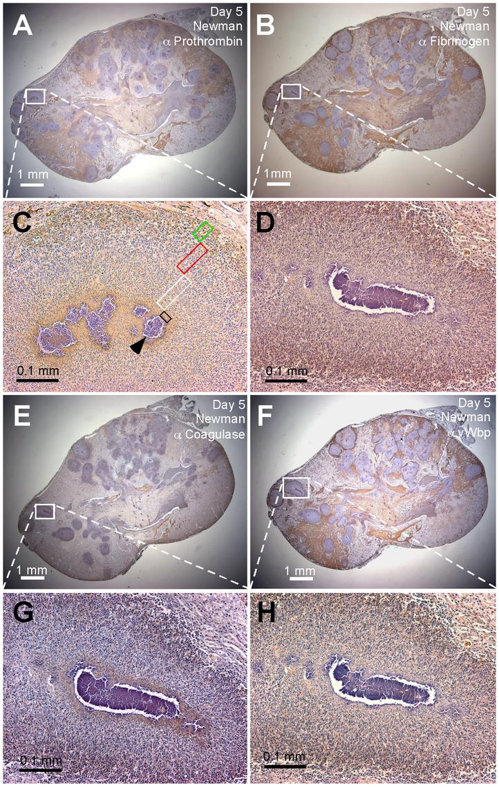 Localization of prothrombin, fibrinogen, coagulase (Coa), and von Willebrand factor binding protein (vWbp) in staphylococcal abscesses.