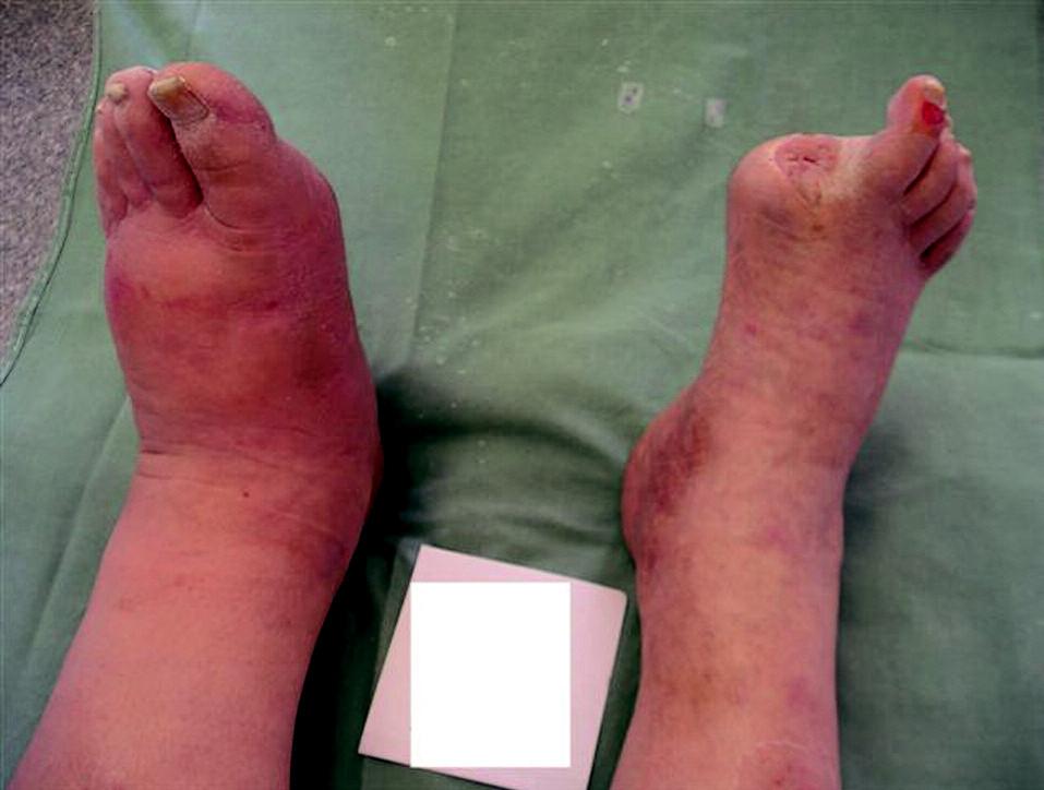 Akutní Charcotova osteoartropatie.